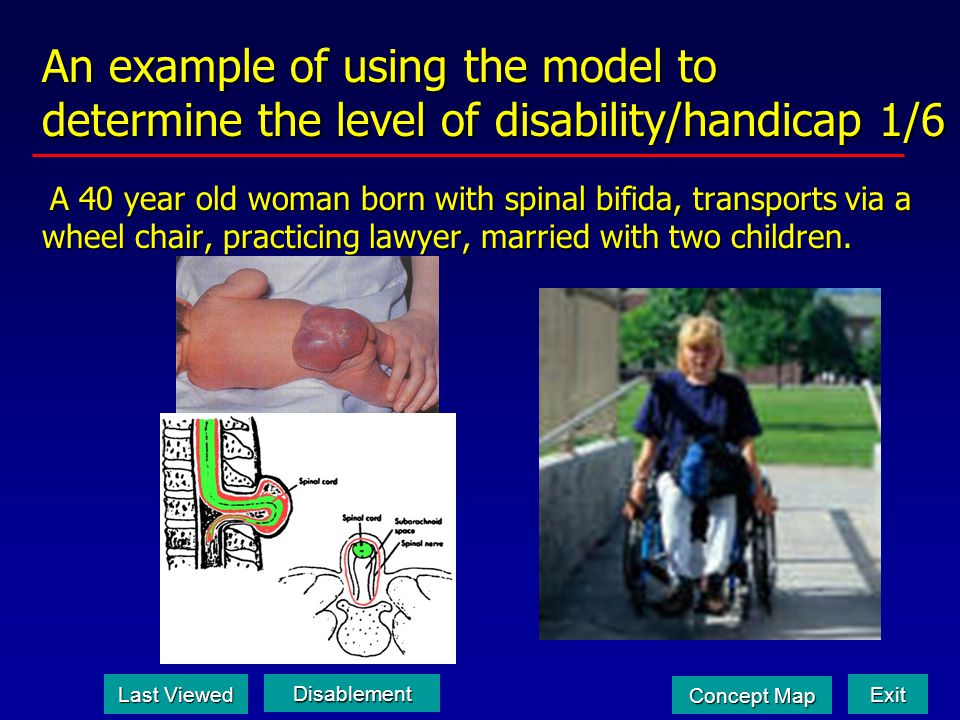 An example of using the model to determine the level of disability/handicap 1/6 A 40 year old woman born with spinal bifida, transports via a wheel chair, practicing lawyer, married with two children.