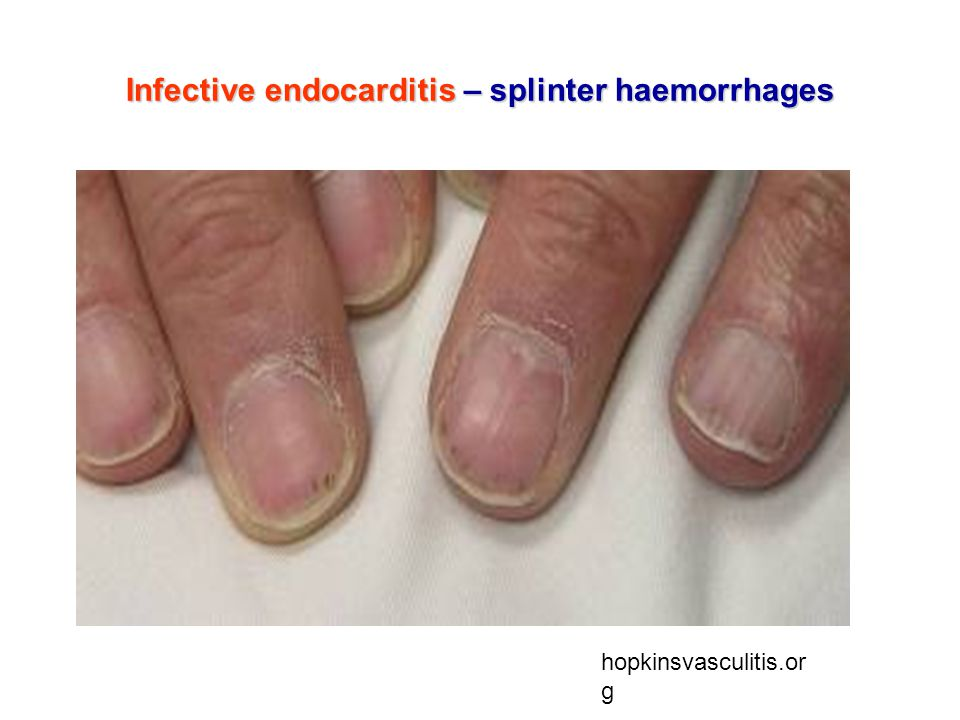 Infective endocarditis – splinter haemorrhages