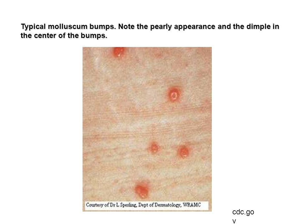 Typical molluscum bumps