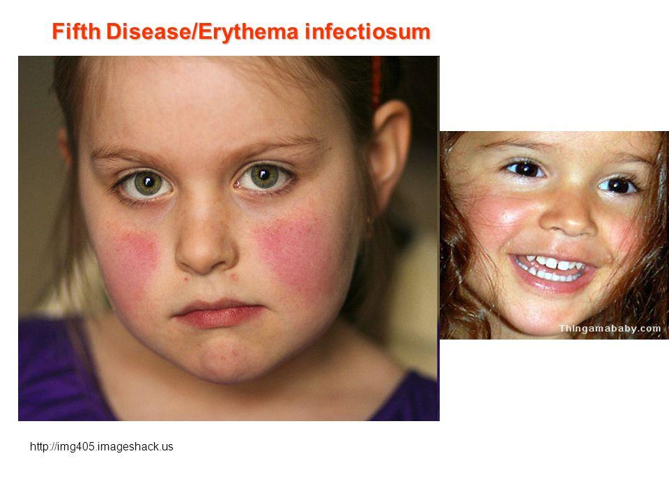 Fifth Disease/Erythema infectiosum