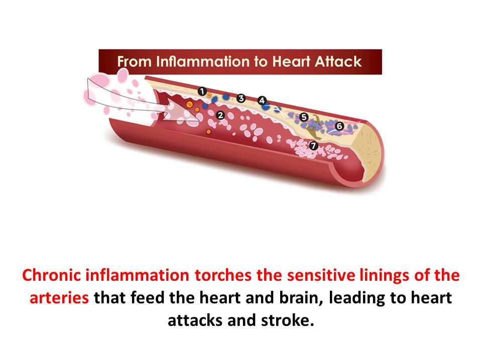 Chronic inflammation torches the sensitive linings of the arteries that feed the heart and brain, leading to heart attacks and stroke.