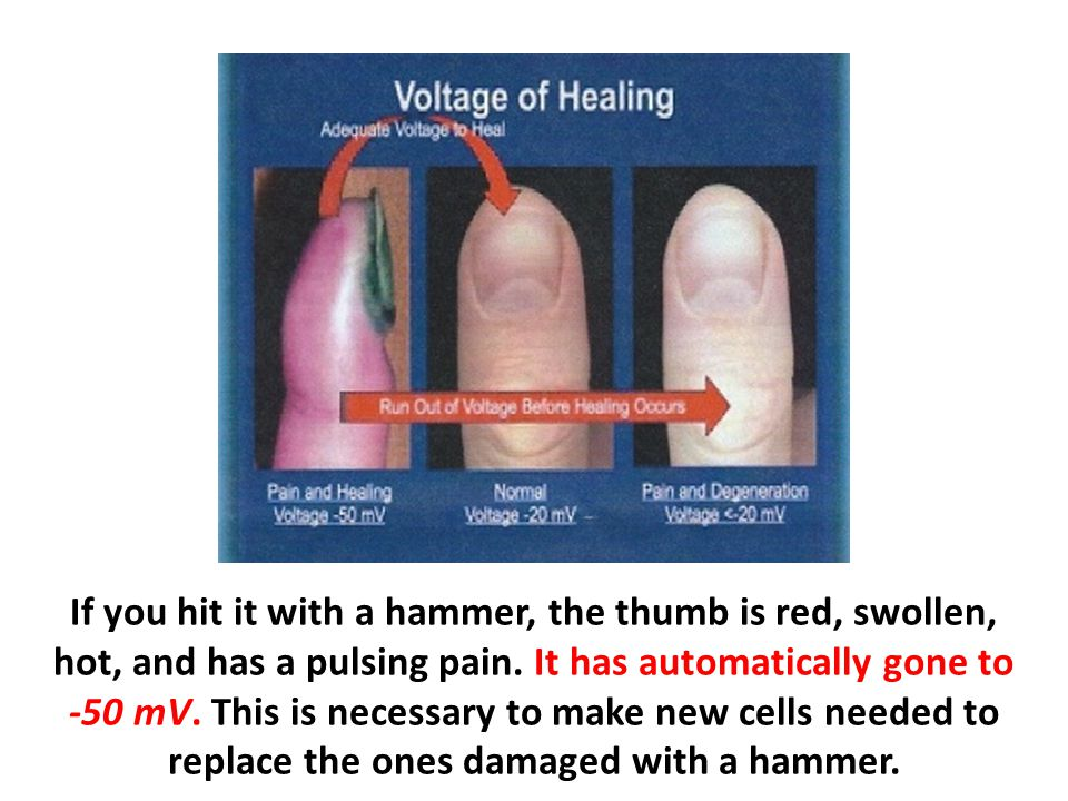 If you hit it with a hammer, the thumb is red, swollen, hot, and has a pulsing pain.