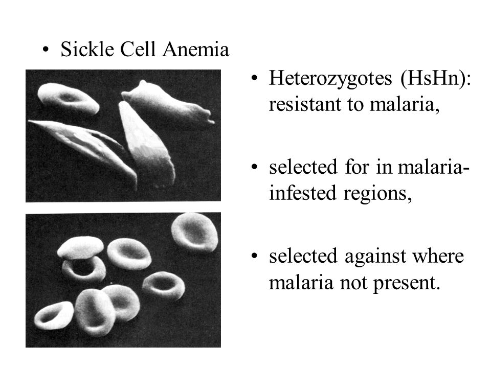 Sickle Cell Anemia Heterozygotes (HsHn): resistant to malaria, selected for in malaria-infested regions,