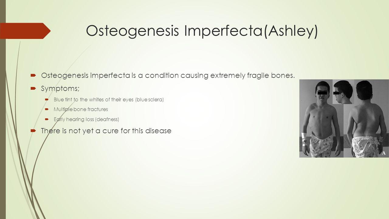 Osteogenesis Imperfecta(Ashley)