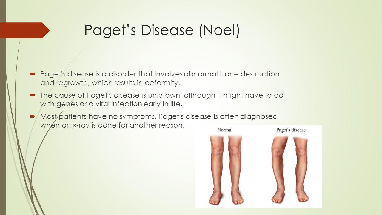 Paget's Disease (Noel)