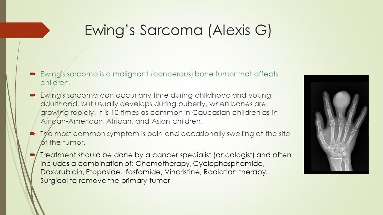 Ewing's Sarcoma (Alexis G)