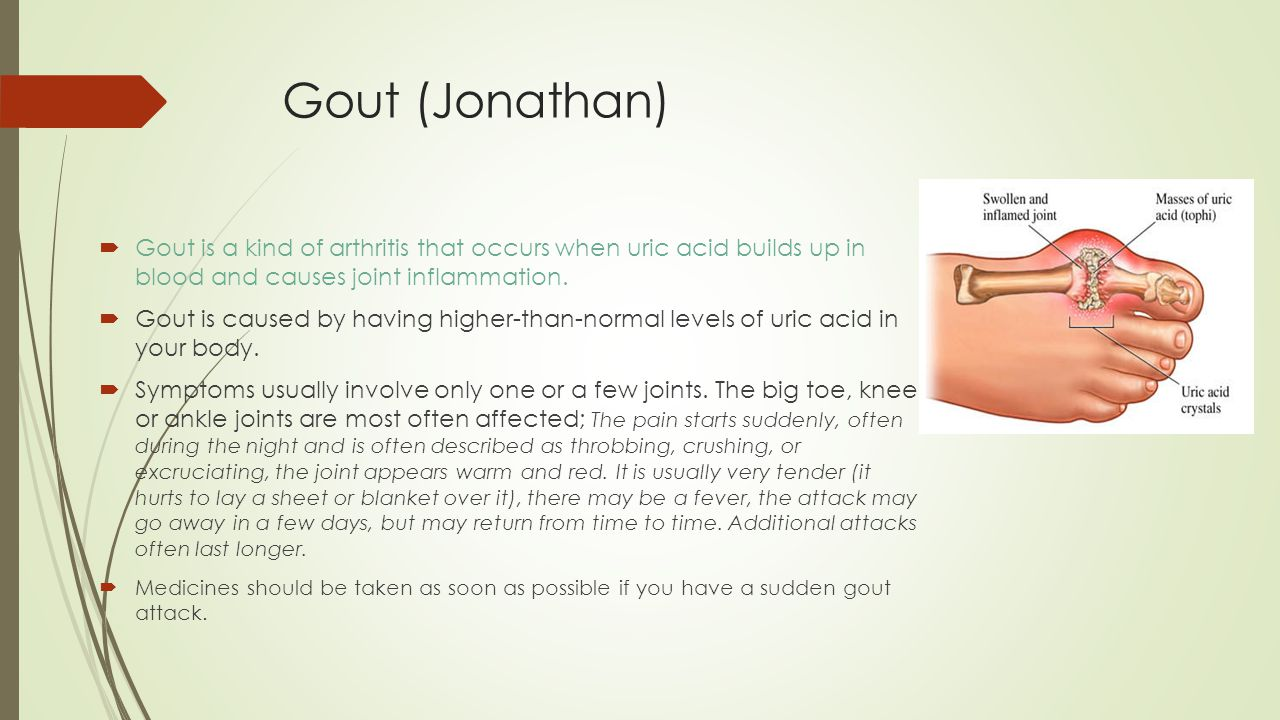 Gout (Jonathan) Gout is a kind of arthritis that occurs when uric acid builds up in blood and causes joint inflammation.
