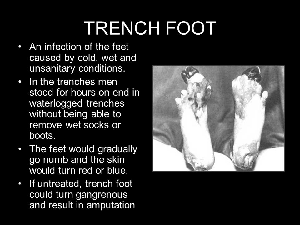 TRENCH FOOT An infection of the feet caused by cold, wet and unsanitary conditions.
