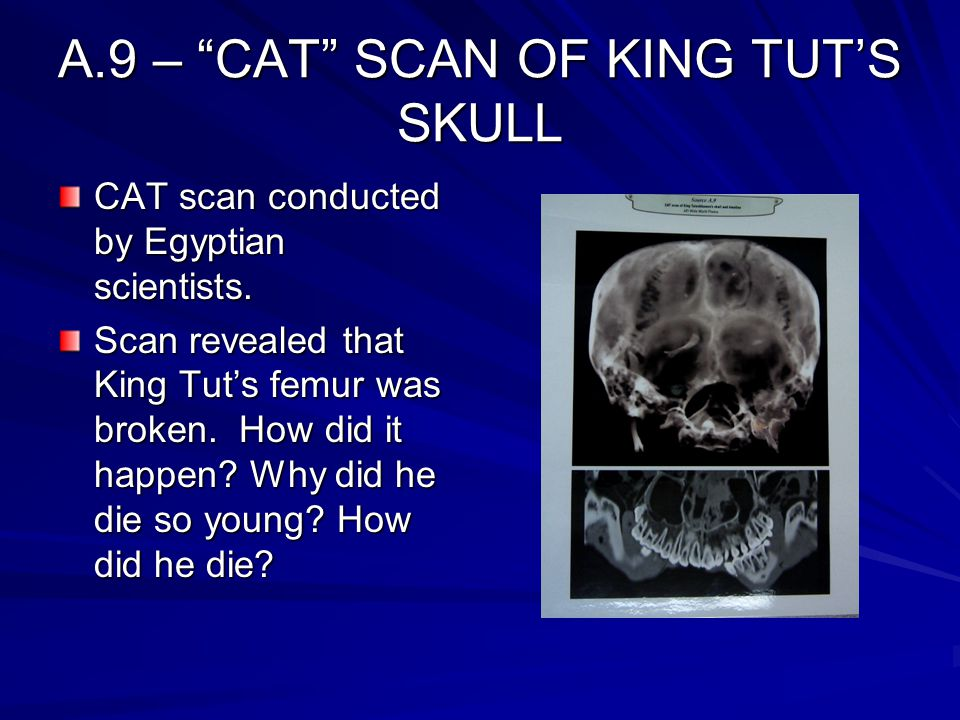 A.9 – CAT SCAN OF KING TUT'S SKULL
