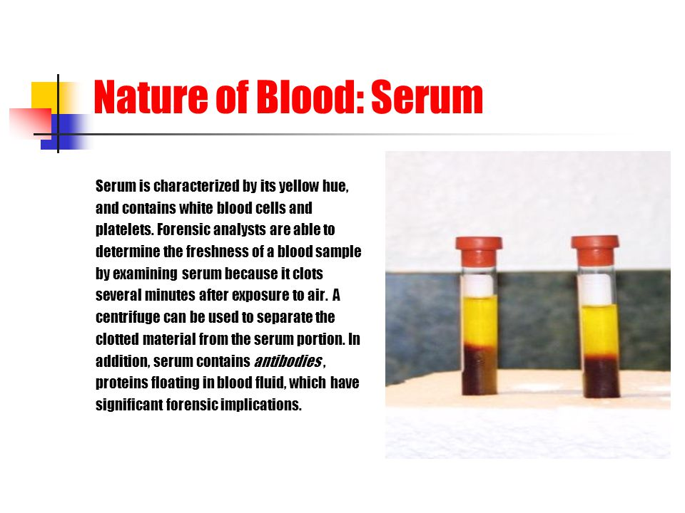 Nature of Blood: Serum Serum is characterized by its yellow hue,