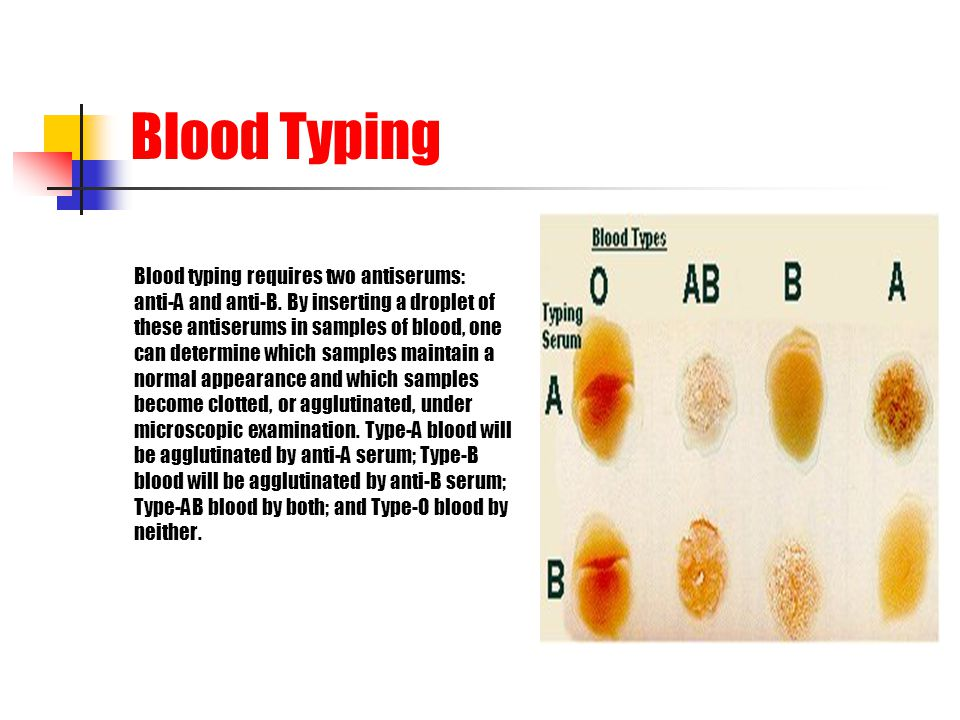 Blood Typing Blood typing requires two antiserums: