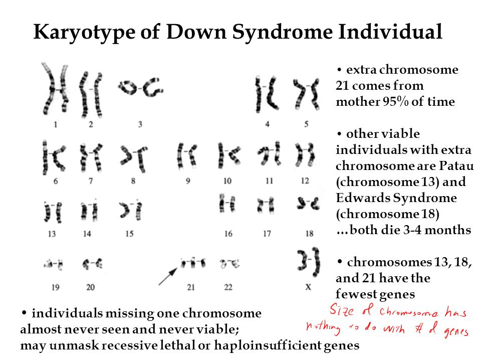 Karyotype of Down Syndrome Individual