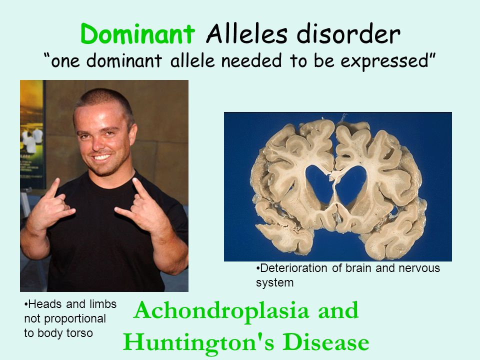 Dominant Alleles disorder one dominant allele needed to be expressed