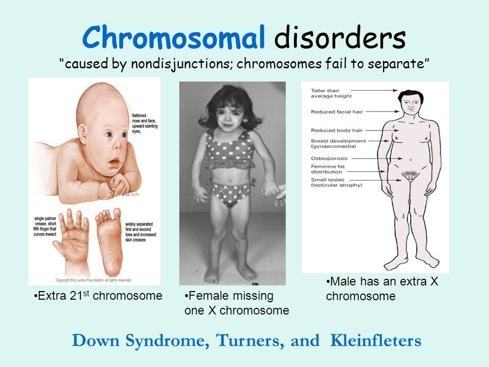 Down Syndrome, Turners, and Kleinfleters