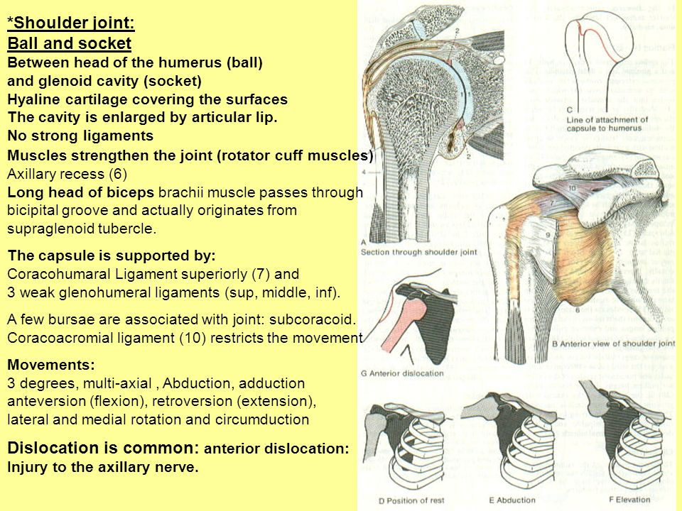 Dislocation is common: anterior dislocation: