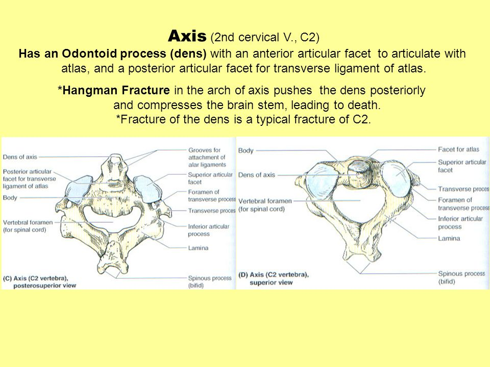 Axis (2nd cervical V., C2)Has an Odontoid process (dens) with an anterior articular facet to articulate with.
