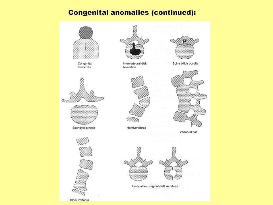 Congenital anomalies (continued):