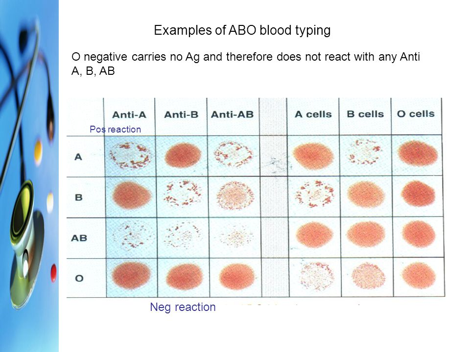 Examples of ABO blood typing
