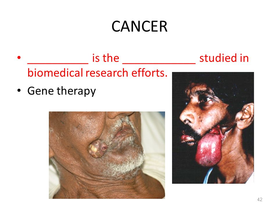 CANCER __________ is the ____________ studied in biomedical research efforts. Gene therapy