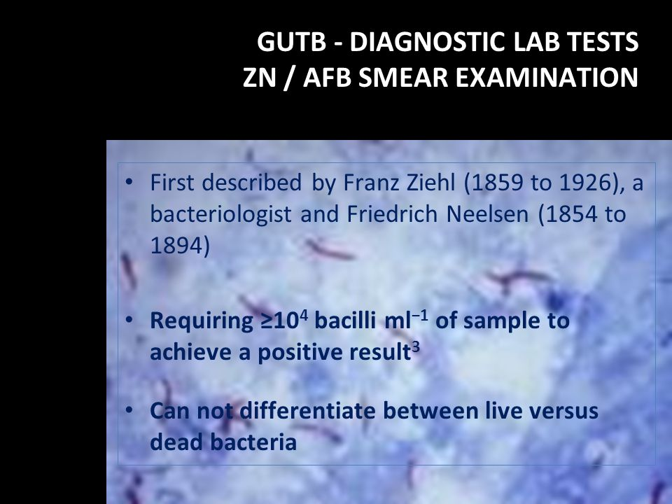 GUTB - DIAGNOSTIC LAB TESTS ZN / AFB SMEAR EXAMINATION