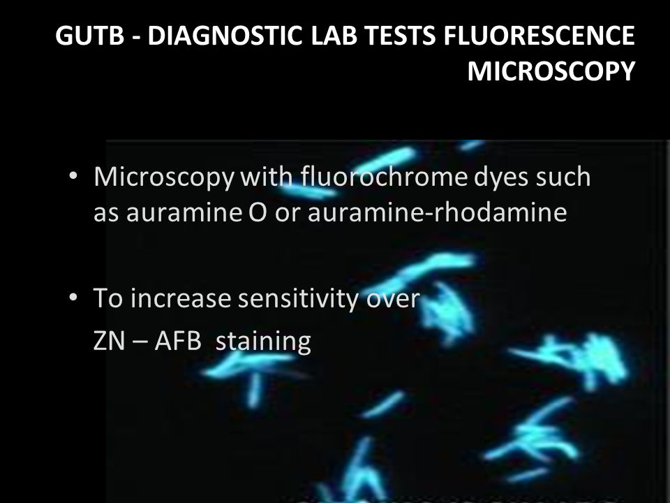 GUTB - DIAGNOSTIC LAB TESTS FLUORESCENCE MICROSCOPY