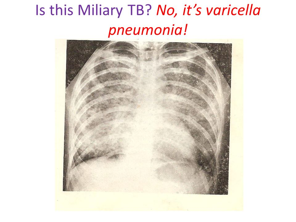 Is this Miliary TB No, it's varicella pneumonia!