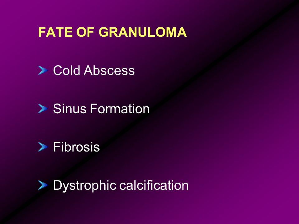 FATE OF GRANULOMA Cold Abscess Sinus Formation Fibrosis Dystrophic calcification