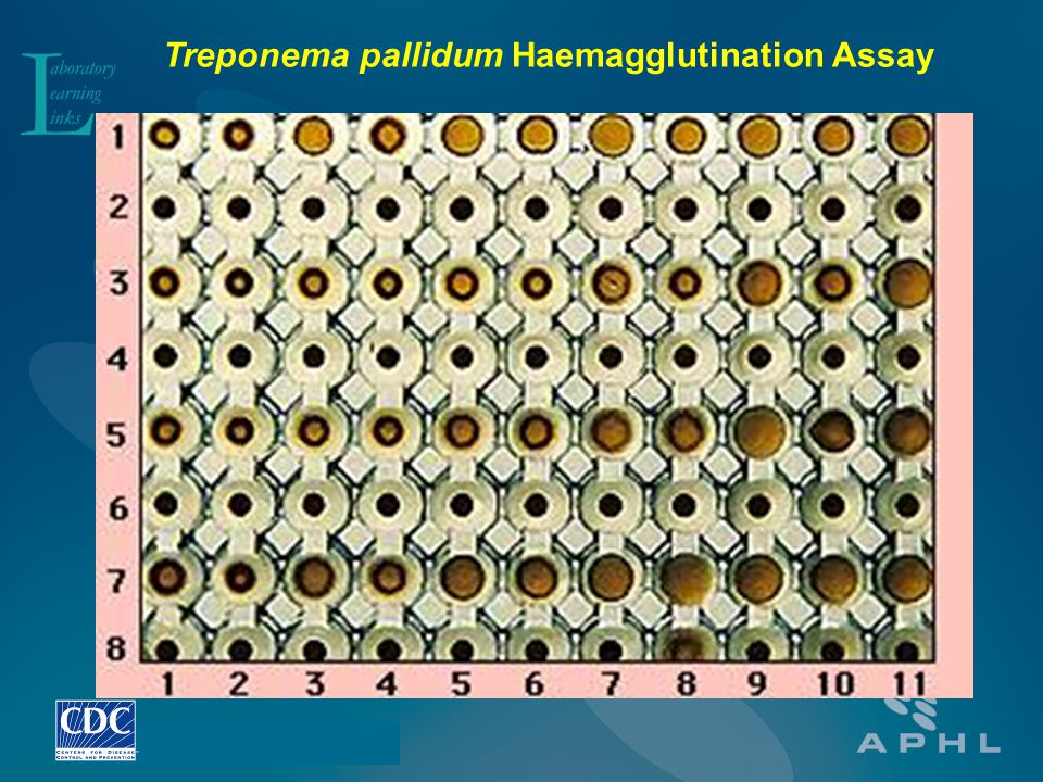 Treponema pallidum Haemagglutination Assay