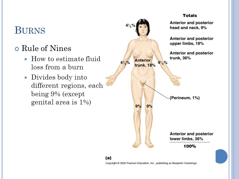 Burns Rule of Nines How to estimate fluid loss from a burn