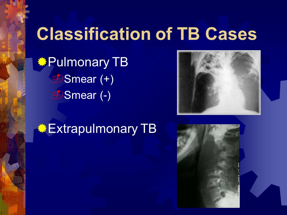 Classification of TB Cases