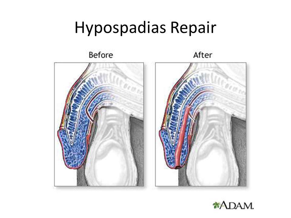 Hypospadias Repair