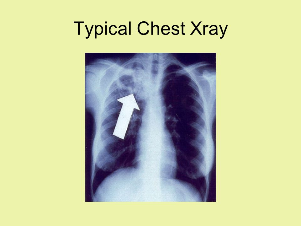 Typical Chest Xray