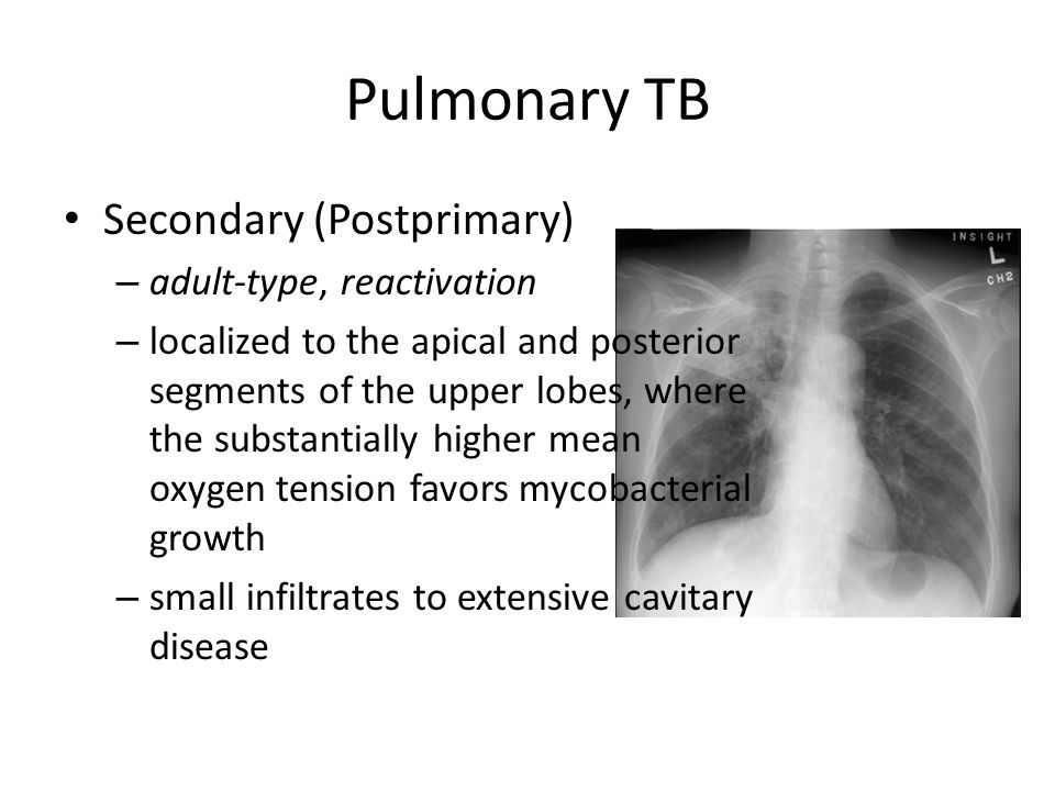 Pulmonary TB Secondary (Postprimary) adult-type, reactivation
