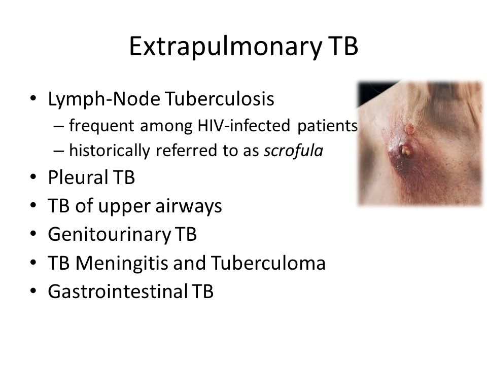 Extrapulmonary TB Lymph-Node Tuberculosis Pleural TB