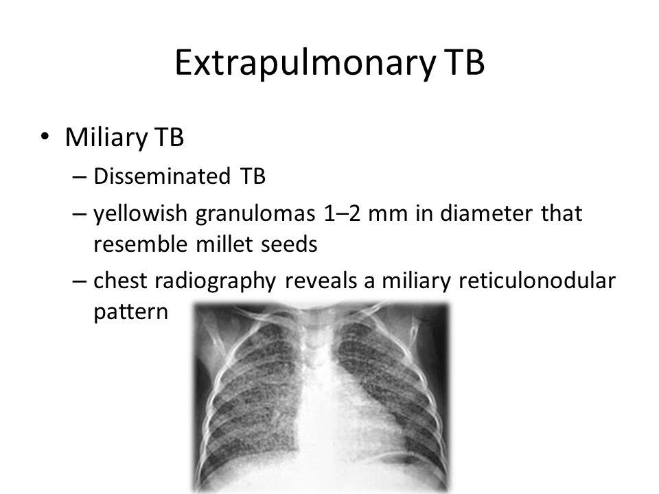Extrapulmonary TB Miliary TB Disseminated TB