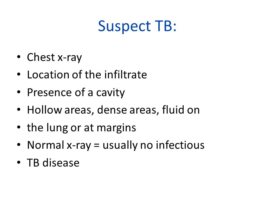 Suspect TB: Chest x-ray Location of the infiltrate