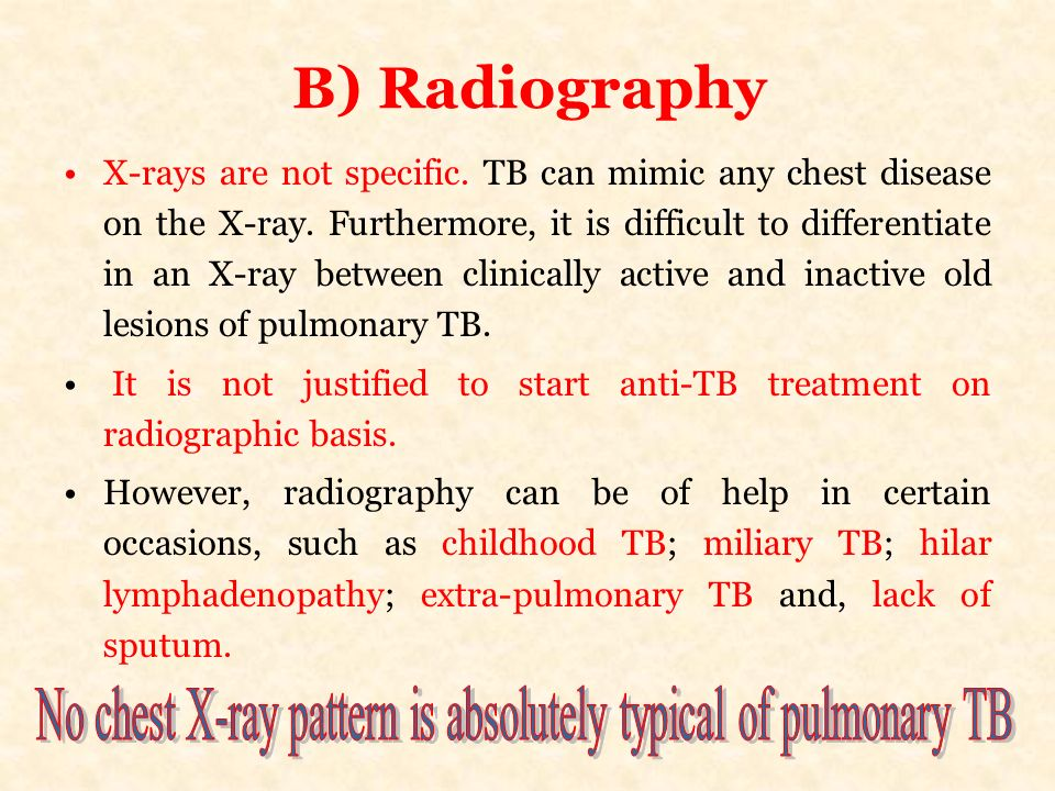 No chest X-ray pattern is absolutely typical of pulmonary TB