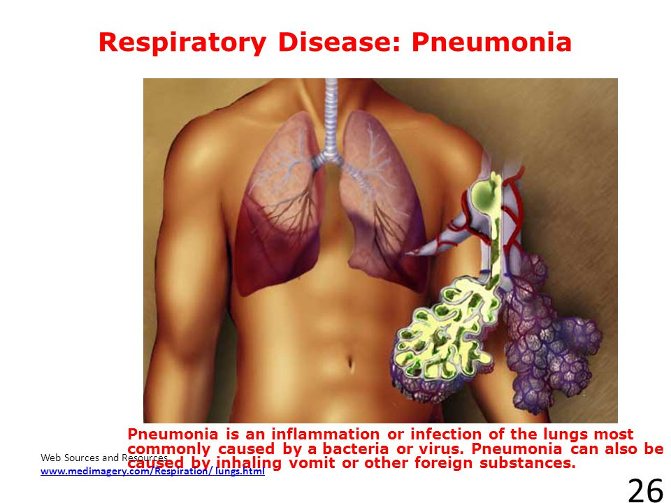 Respiratory Disease: Pneumonia