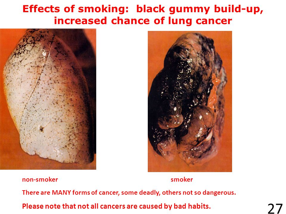 Effects of smoking: black gummy build-up, increased chance of lung cancer