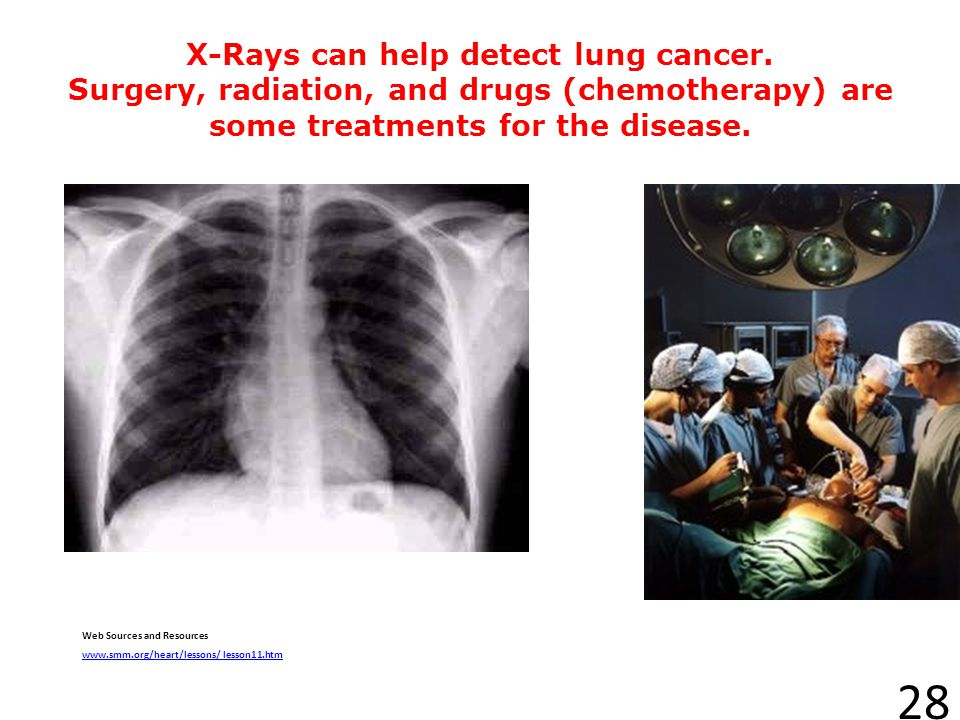 X-Rays can help detect lung cancer
