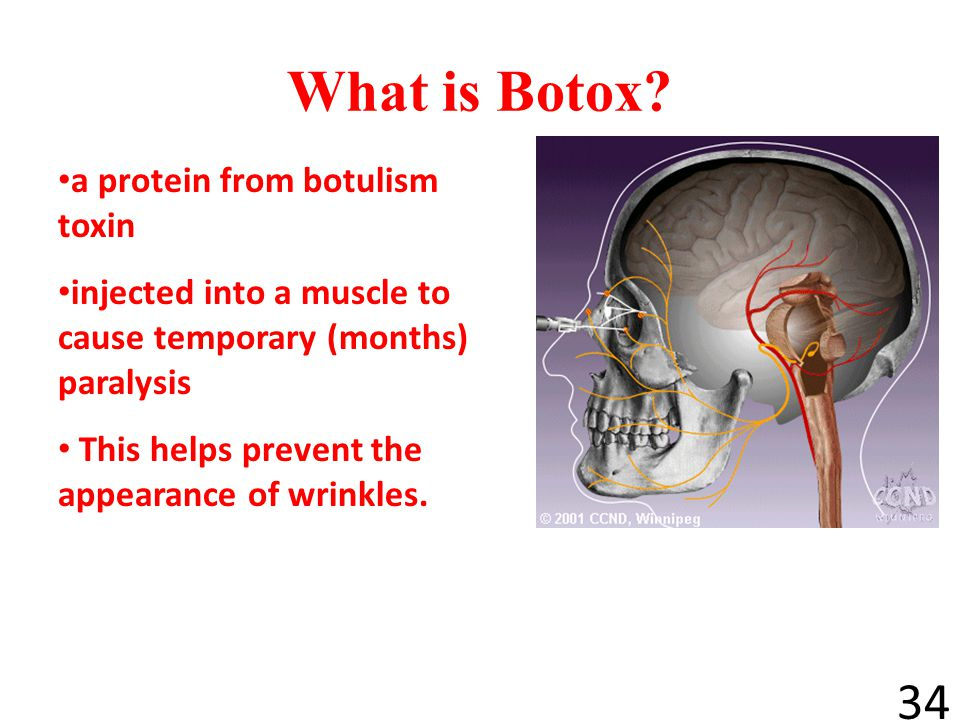 What is Botox a protein from botulism toxin