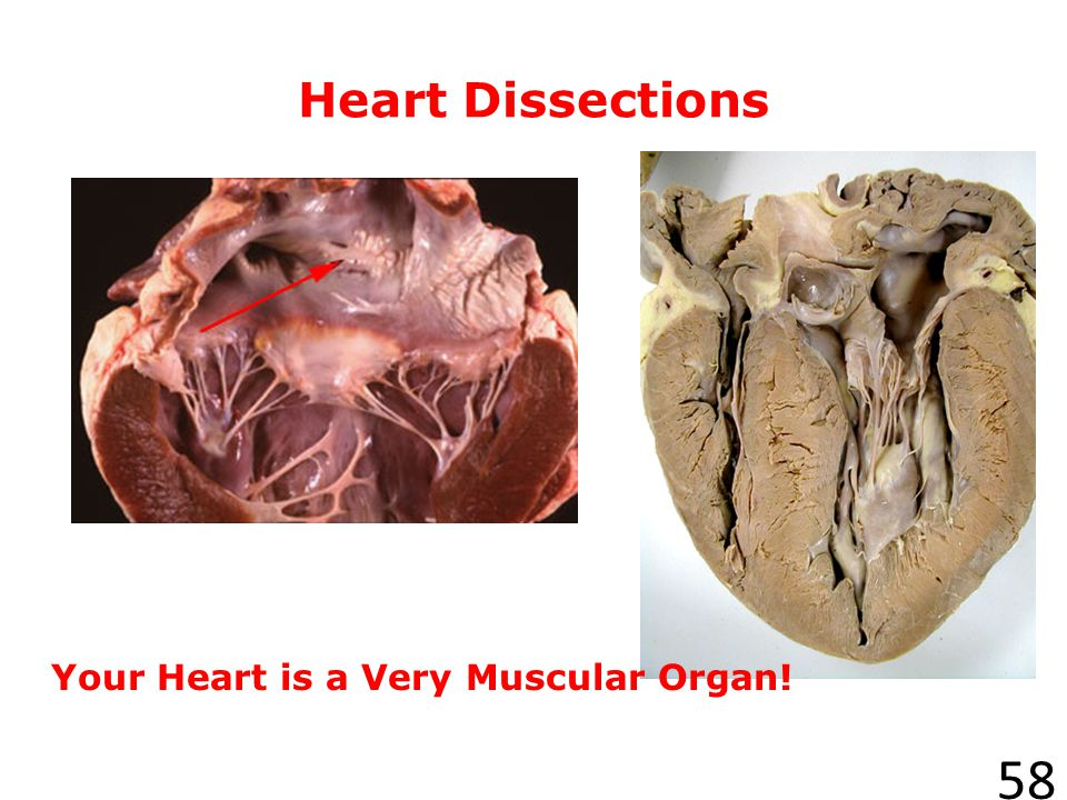 Heart Dissections Your Heart is a Very Muscular Organ! Human heart