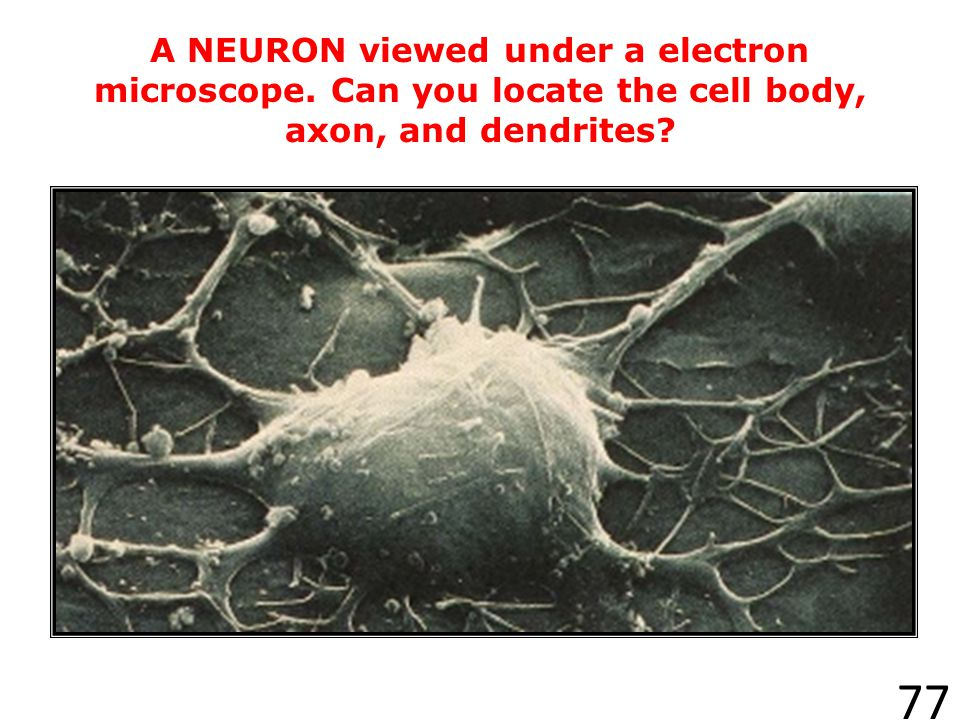A NEURON viewed under a electron microscope