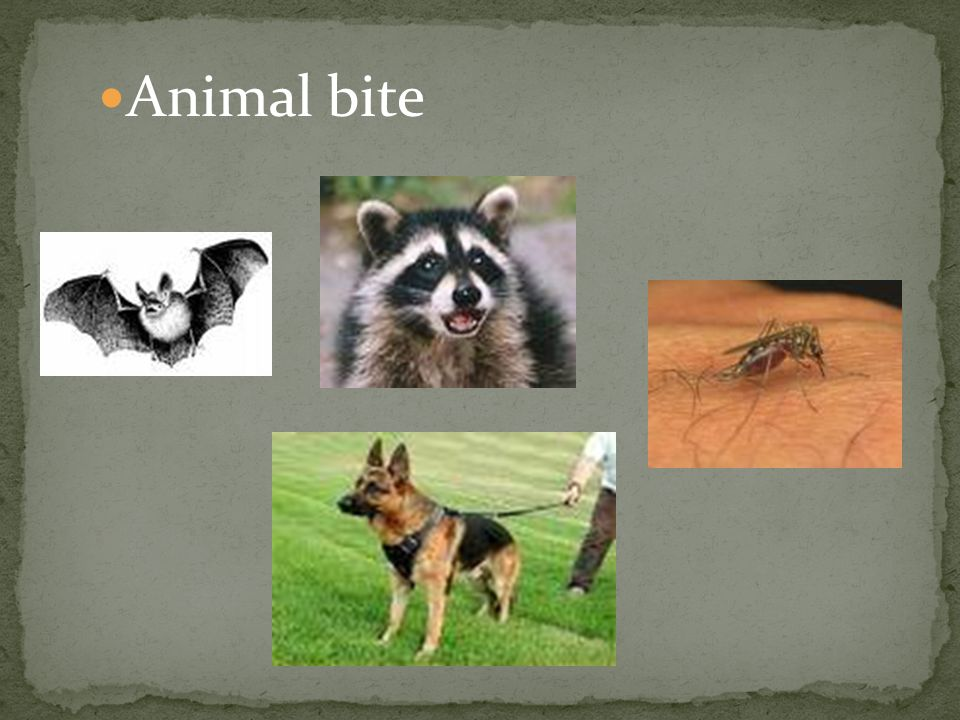 Animal bite