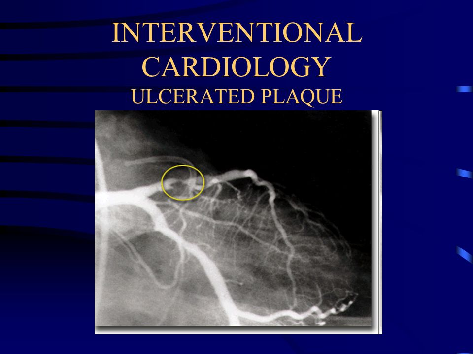 INTERVENTIONAL CARDIOLOGY ULCERATED PLAQUE