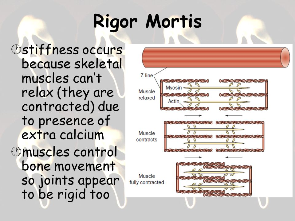 Rigor Mortis stiffness occurs because skeletal muscles can't relax (they are contracted) due to presence of extra calcium.