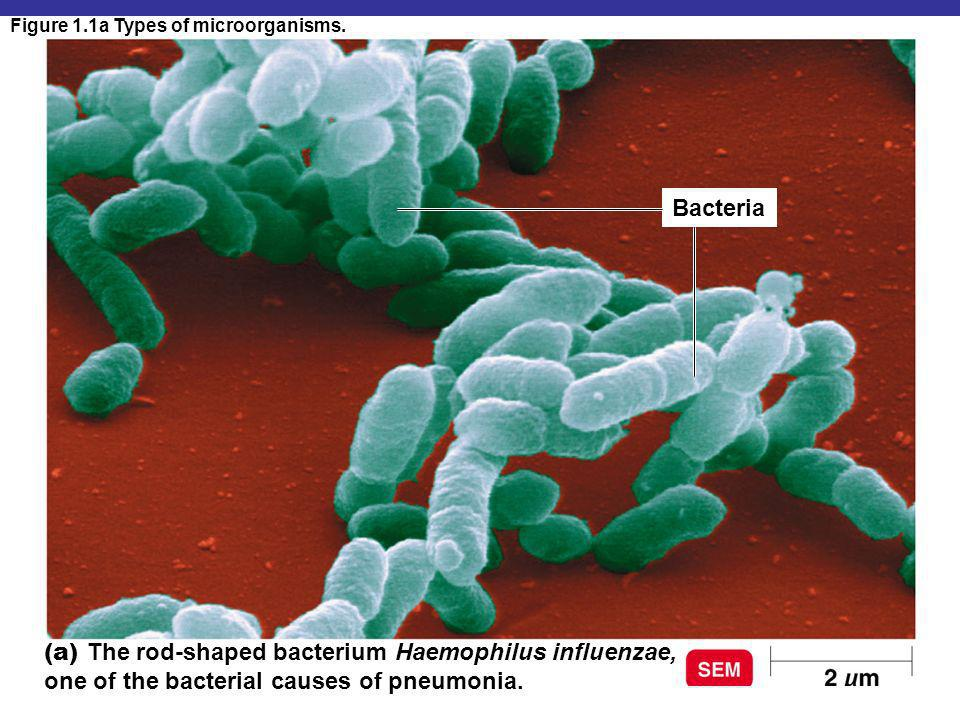 Figure 1.1a Types of microorganisms.