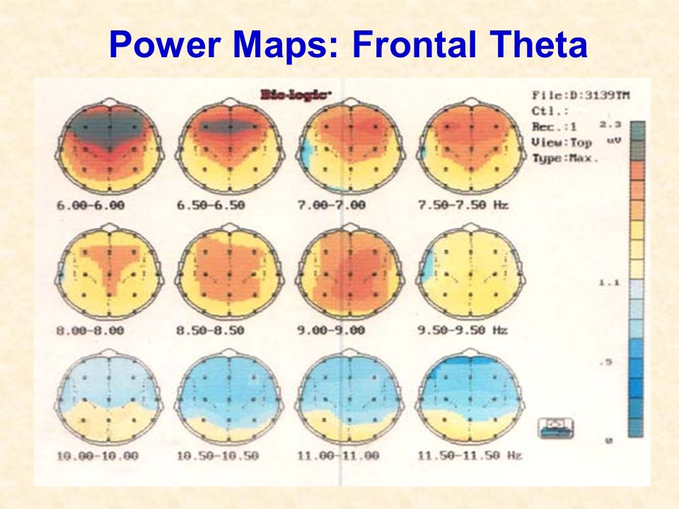 Power Maps: Frontal Theta