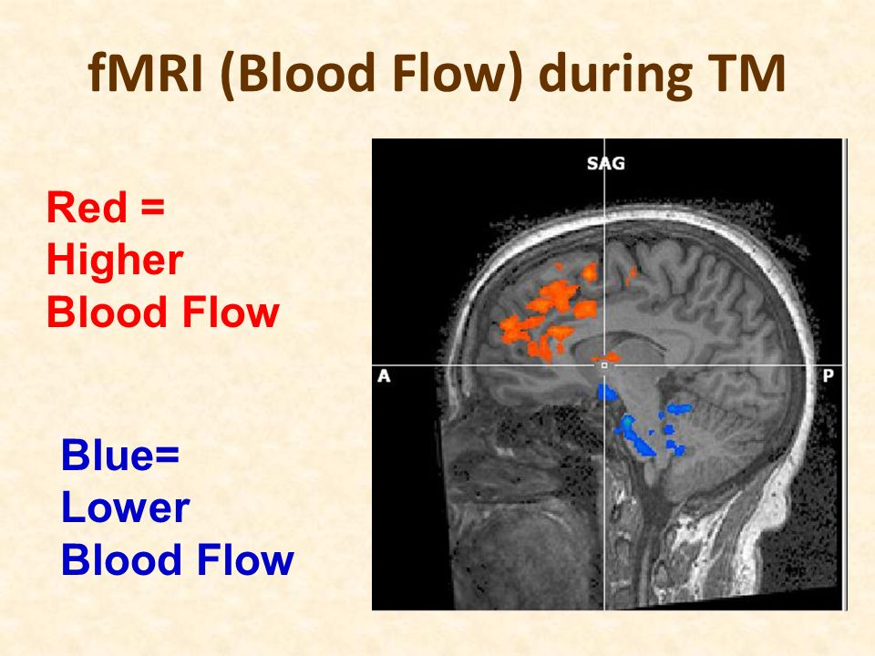 fMRI (Blood Flow) during TM