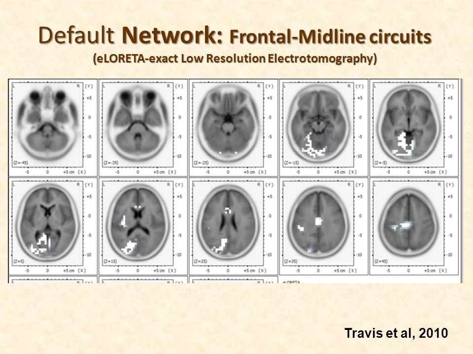 Default Network: Frontal-Midline circuits (eLORETA-exact Low Resolution Electrotomography)